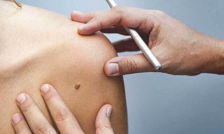 The purpose of this image is to let the reader know that this is about skin cancer diagnosis by showing a doctor examining a suspicious region of skin.